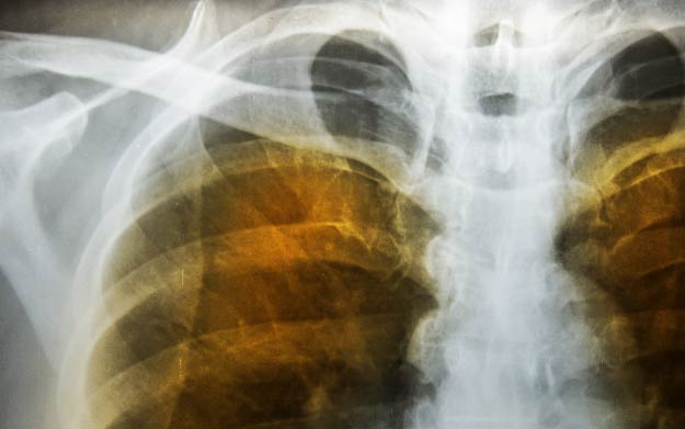 Chest X-ray of an emphysema patient | How Ambient Air Pollution Affects Our Health | Health impacts of air pollution