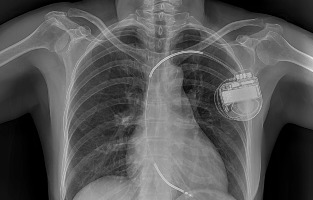 X-ray-image-of-permanent-pacemaker-implantation-in-patient-chest-body | How to Treat and Prevent Periodic Breathing | What Is Periodic Breathing - What Can I Do?